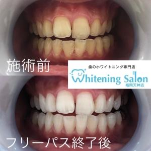 【歯茎が下がるデメリット・原因&対策】