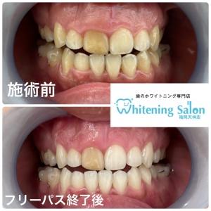 【40歳以降に急増する歯茎のトラブル】