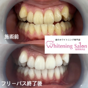 【銀歯のデメリット】