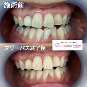 【歯茎と歯の境目が黒い原因と治し方】