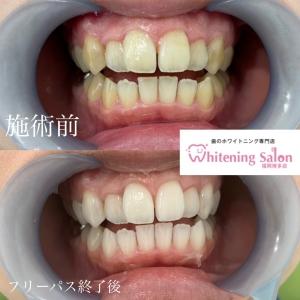 【歯間ケアのアイテム】