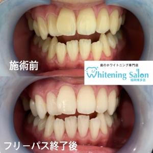 【電動歯ブラシ】