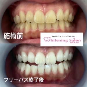 【大人が歯を失う平均年齢と予防法】