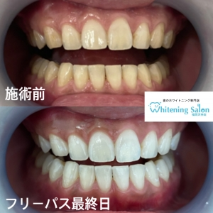 【過剰歯について】