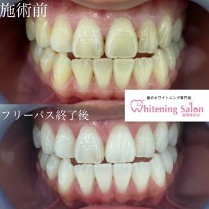 【歯の白さは維持できるのか?】