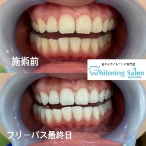 【テトラサイクリン歯とは】