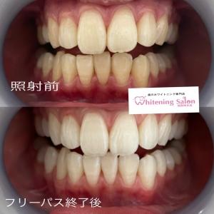 【歯の磨き過ぎは良くない‼︎】