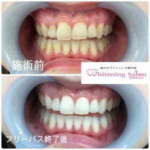 【歯肉炎と歯周炎の違い】