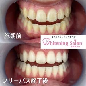 【歯周病のセルフチェック】