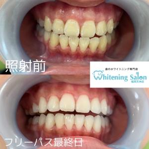 【電動歯ブラシの使い方】