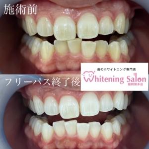 【白い歯にするメリット】